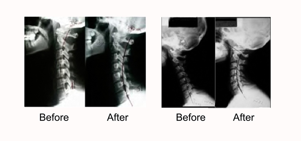 Neck pain and Whiplash - The Ashford Back and Wellness Centre